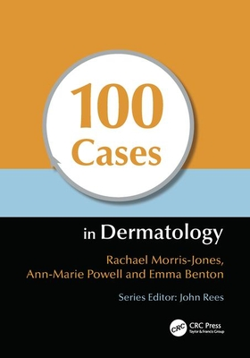 100 Cases in Dermatology - Morris-Jones, Rachael, and Powell, Ann-Marie, and Benton, Emma