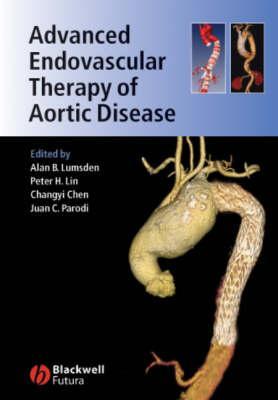 Advanced Endovascular Therapy of Aortic Disease - Lumsden, Alan B (Editor)