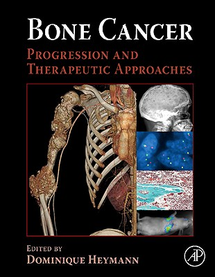 Bone Cancer: Progression and Therapeutic Approaches - Heymann, Dominique (Editor)