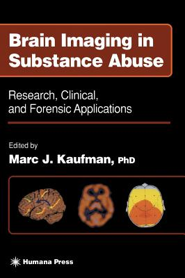 Brain Imaging in Substance Abuse - Kaufman, Marc J (Editor)