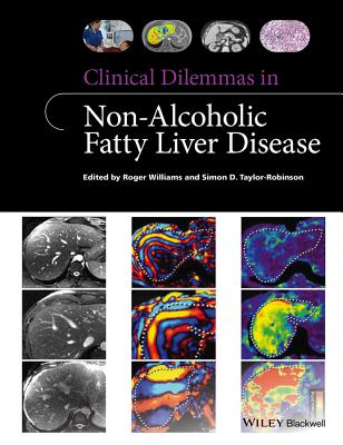 Clinical Dilemmas in Non-Alcoholic Fatty Liver Disease - Williams, Roger, and Taylor-Robinson, Simon D.