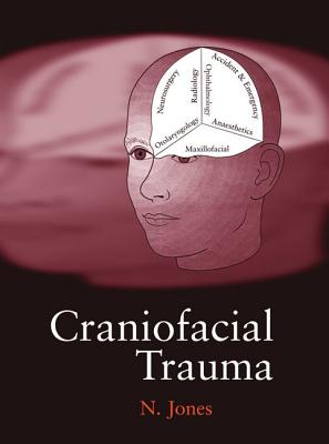 Craniofacial Trauma: An Interdisciplinary Approach - Jones, Mari C, Dr.