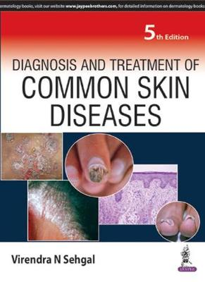 Diagnosis and Treatment of Common Skin Diseases - Sehgal, Virendra N.