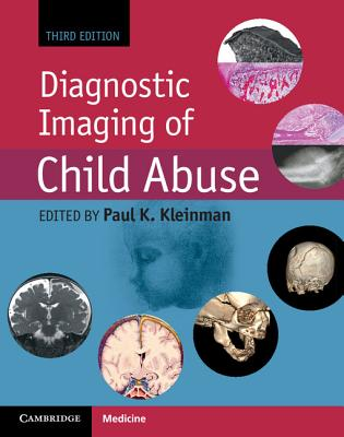 Diagnostic Imaging of Child Abuse - Kleinman, Paul K (Editor)