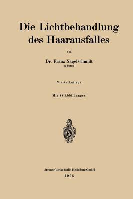 Die Lichtbehandlung Des Haarausfalles - Nagelschmidt, Franz