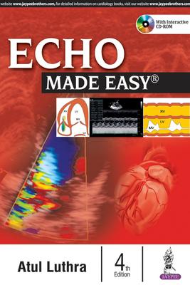 Echo Made Easy - Luthra, Atul