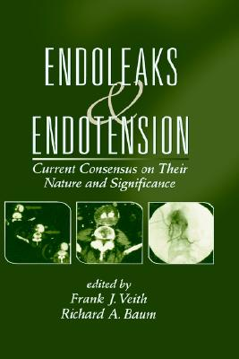 Endoleaks and Endotension: Current Consensus on Their Nature and Significance - Veith, Frank J (Editor)