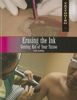 Erasing the Ink: Getting Rid of Your Tattoo - Spalding, Frank