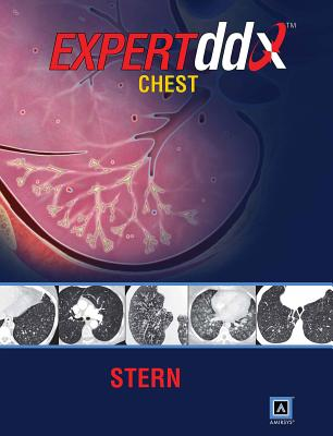 EXPERTddx: Chest: Published by Amirsys (R) - Stern, Eric J., MD, and Gurney, Jud W., and Walker, Christopher M.