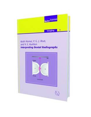Interpreting Dental Radiographs: Imaging - Horner, Keith, and Rout, John, and Rushton, Vivian E