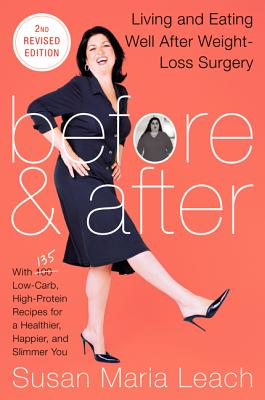 Before & After: Living and Eating Well After Weight-Loss Surgery - Leach, Susan Maria