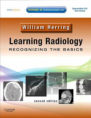 Learning Radiology: Recognizing the Basics - Herring, William