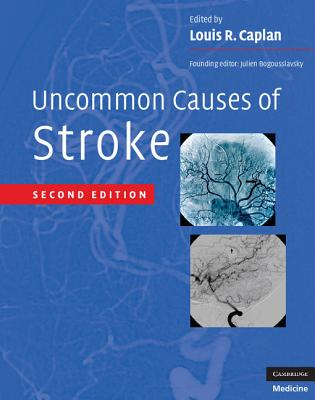 Uncommon Causes of Stroke - Caplan, Louis R, M.D. (Editor)