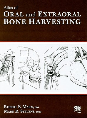 Atlas of Oral and Extraoral Bone Harvesting - Marx, Robert E, and Stevens, Mark R