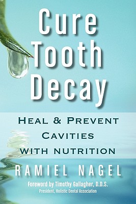 Cure Tooth Decay: Heal and Prevent Cavities with Nutrition - Nagel, Ramiel, and Gallagher, D D S Timothy (Foreword by)