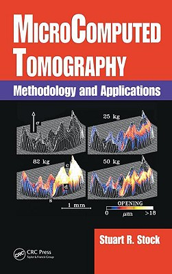 Microcomputed Tomography: Methodology and Applications - Stock, Stuart R