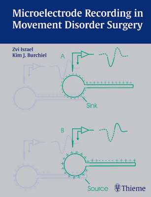 Microelectrode Recording in Movement Disorder Surgery - Israel, Zvi (Editor)