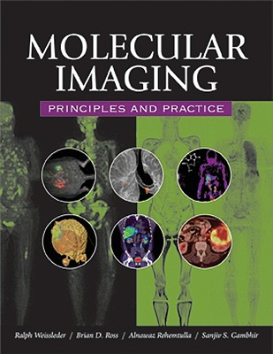 Molecular Imaging: Principles and Practice - Weissleder, Ralph, MD, PhD