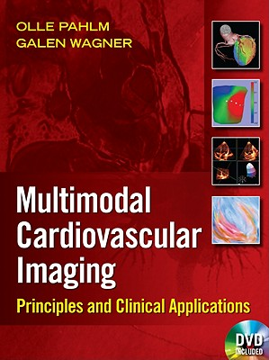 Multimodal Cardiovascular Imaging: Principles and Clinical Applications - Pahlm, Olle, and Wagner, Galen S, MD