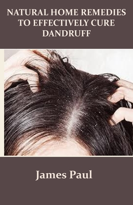 Natural Home Remedies to Effectively Cure Dandruff - Paul, James