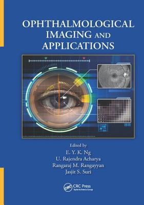Ophthalmological Imaging and Applications - Ng, E. Y. K. (Editor), and Acharya, U. Rajendra (Editor), and Rangayyan, Rangaraj M. (Editor)