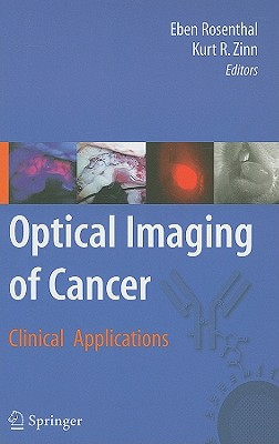 Optical Imaging of Cancer: Clinical Applications - Rosenthal, Eben (Editor)