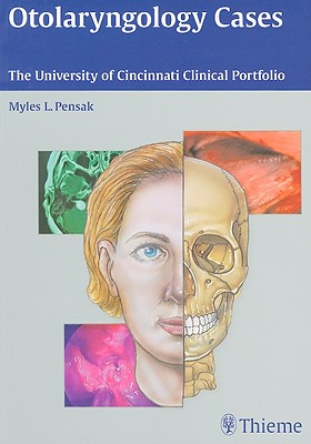 Otolaryngology Cases: The University of Cincinnati Clinical Portfolio - Pensak, Myles L (Editor)