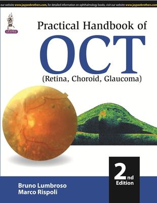 Practical Handbook of OCT - Lumbroso, Bruno, and Rispoli, Marco