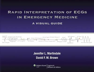 Rapid Interpretation of ECGs in Emergency Medicine: A Visual Guide - Martindale, Jennifer L., and Brown, David F. M.