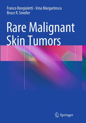 Rare Malignant Skin Tumors - Rongioletti, Franco, and Margaritescu, Irina, and Smoller, Bruce R, MD