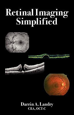 Retinal Imaging Simplified - Landry, Darrin A
