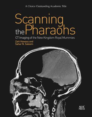 Scanning the Pharaohs: CT Imaging of the New Kingdom Royal Mummies - Hawass, Zahi