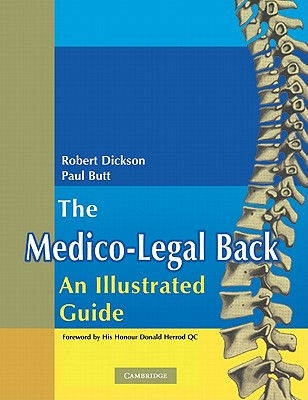 The Medico-Legal Back: An Illustrated Guide - Dickson, Robert A., and Butt, W. Paul