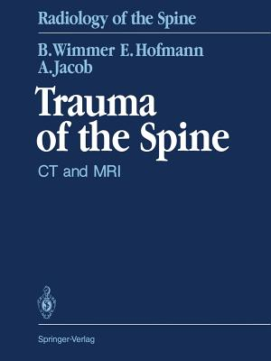 Trauma of the Spine: CT and MRI - Wenz, W (Foreword by)