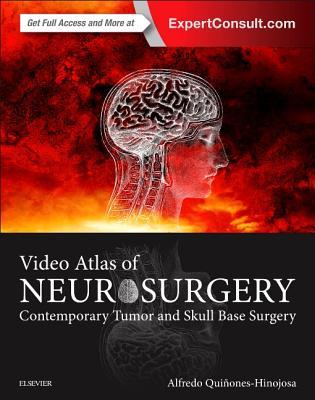 Video Atlas of Neurosurgery: Contemporary Tumor and Skull Base Surgery - Quinones-Hinojosa, Alfredo