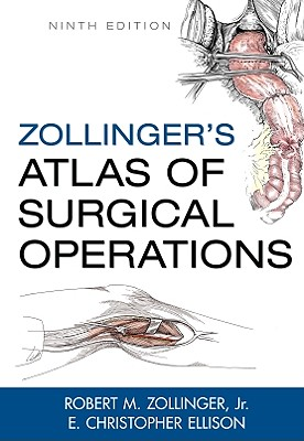 Zollinger's Atlas of Surgical Operations, Ninth Edition - Zollinger, Robert M, and Zollinger, Jr, and Ellison E